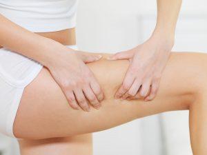 Zyxelle contro la cellulite