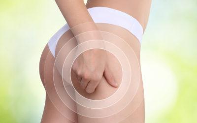 Eliminare la cellulite da cosce e glutei? Sì, si può!