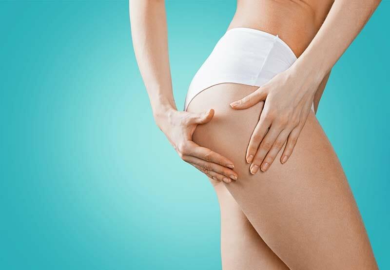 ritenzione idrica e cellulite