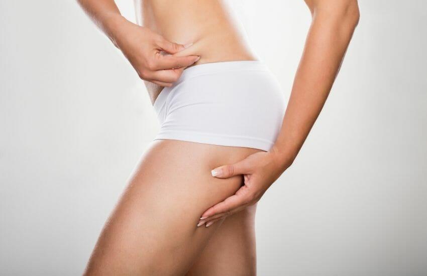 Cellulite: cos'è e quali sono le cause