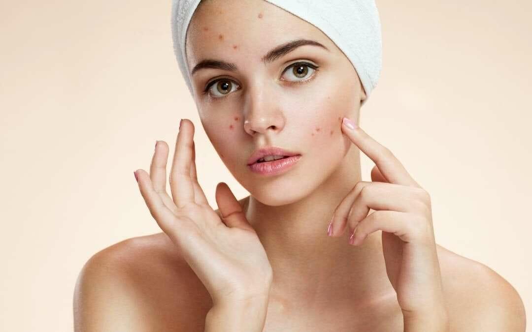 Pillola e acne: quello che devi sapere